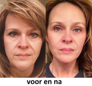Bioxelan skin renewal excellence - hoe aanvragen?