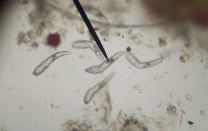 A belső paraziták-a férgek a székletben