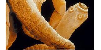 Fertőzés paraziták, milyen gyakran elhanyagolt betegség