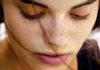 ¿Cómo lidiar con las manchas en la cara?