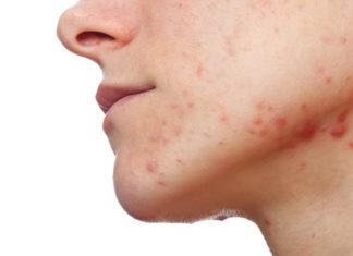 Herpes zoster-gejala, pengobatan dan pencegahan