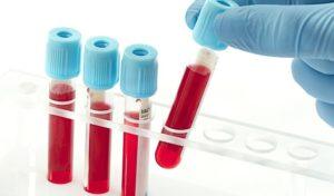 Blodprov för parasiter-hur man tolkar resultaten?