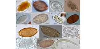 Kako prepoznati parazita u tijelu – studija krvi