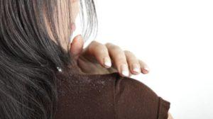 Los tratamientos más eficaces en la lucha contra la caspa