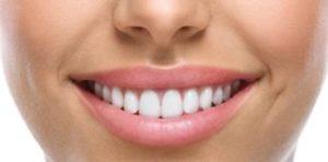Jaga senyum anda! White Smile Extra dasar tindakan