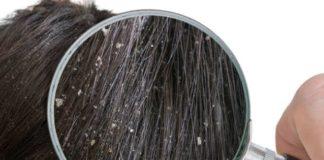 Ajurweda Dla Włosów: 5 Domowych Sposobów, Aby Pokonać Łupież, Naturalnie