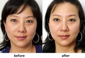 bioxelan skin renewal excellence