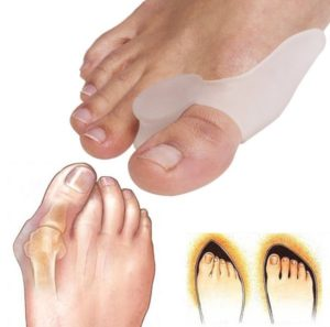 Valgomed bunion separator, for bunions - how to use?