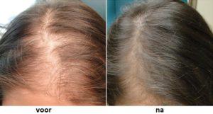Premium Hair Grow Formula capsules - hoe te nemen?
