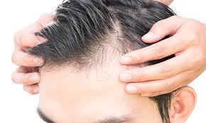 Hair Revital X Romania - original, comanda, amazon