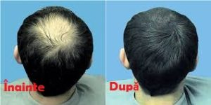 Hair Revital X cumpara - in farmacii