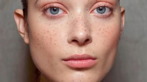 Bright Skin opinii, forum, comentarii
